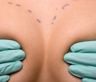 Оперативна пластична хирургия – подготовка за уголемяване на бюста